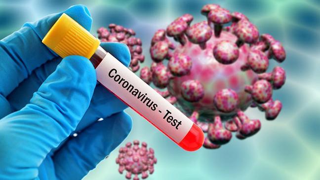 Koronavirusu 48 saata məhv edən dərman tapıldı - Yenilənib