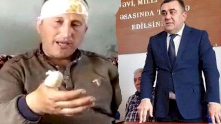 Azərbaycanda sensasiyalı hadisə: icra başçısının müavini şikayətçini pəncərədən atdı - Video