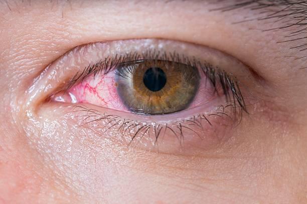 Koronavirus gözə necə təsir edir?