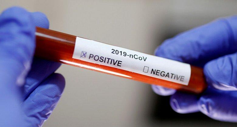 Koronavirusa qarşı vaksinin sınaqları uğurlu olub