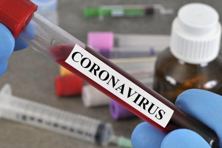 Britaniyada daha 323 nəfər koronavirusdan vəfat edib